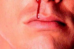 تعبیر خواب خون و بالا آوردن خون - دیدن خون روی زمین در خواب نشانه چیست